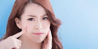 Tips perawatan wajah yang berjerawat saat hamil