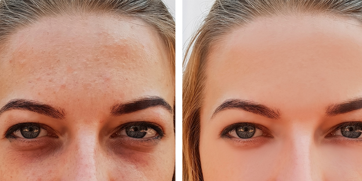 Things you should know about bruising after dermal fillers