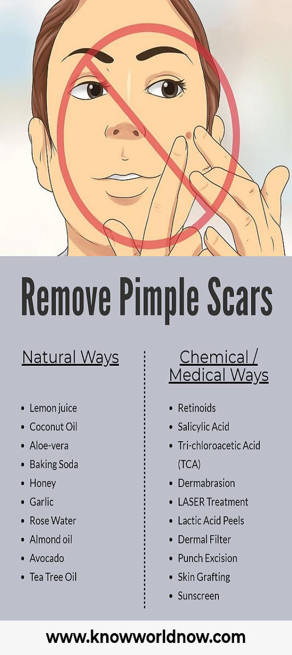 Remove Pimple Scars