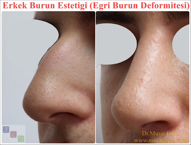 Crooked nose - Deviated nose - Twisted nose - Deflected nose - Asymmetric nose - Scoliotic nose - Eğri burun - C burun - S-shaped crooked nose deformity -  Rhinoplasty Istanbul - Rhinoplasty in Istanbul - Rhinoplasty Turkey - Rhinoplasty in Turkey – Rhinoplasty doctor in Istanbul – ENT doctor in Istanbul - Nose Job in Istanbul - Before and after rhinoplasty photos