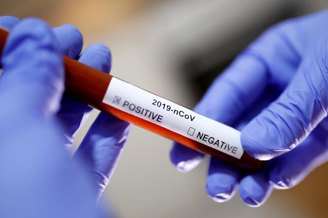 Secretaria de Saúde confirma terceira morte de paciente com coronavírus no RN