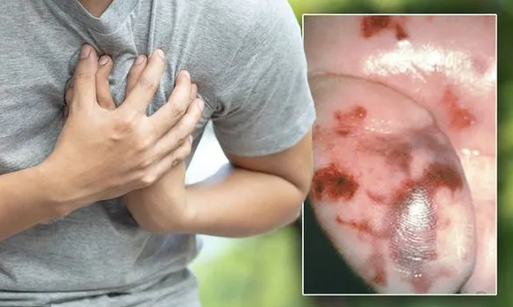 Heart attack warning - the rash on your foot that could be a sign of deadly heart disease