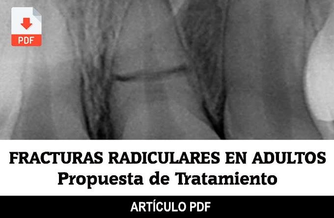 PDF: Fracturas Radiculares en pacientes adultos: propuesta de tratamiento actual