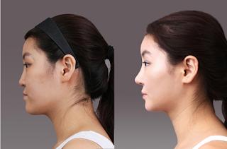sebelum dan sesudah operasi plastik hidung Korea-2