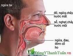 lưu ý đối với bệnh nhân viêm xoang