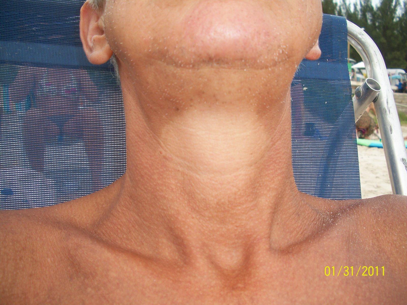Desintoxicacion Mirthablogspotcom Sustancias Extrañas En Tiroides
