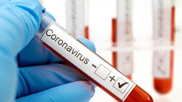 Koronavirüs Antikor Testleri Nasıl Çalışır