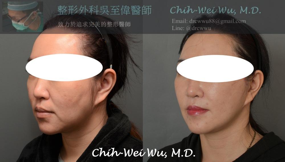 【全方位拉皮手術法-高位筋膜懸吊中下臉拉皮】