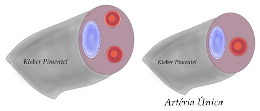 imagen de arteria umbilical unica