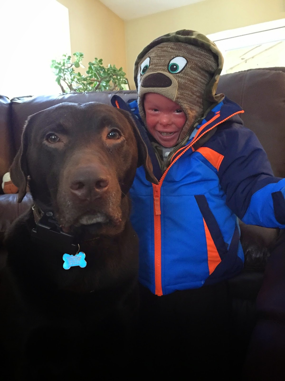 Evan, who has Harlequin Ichthyosis, with his dog Bruli