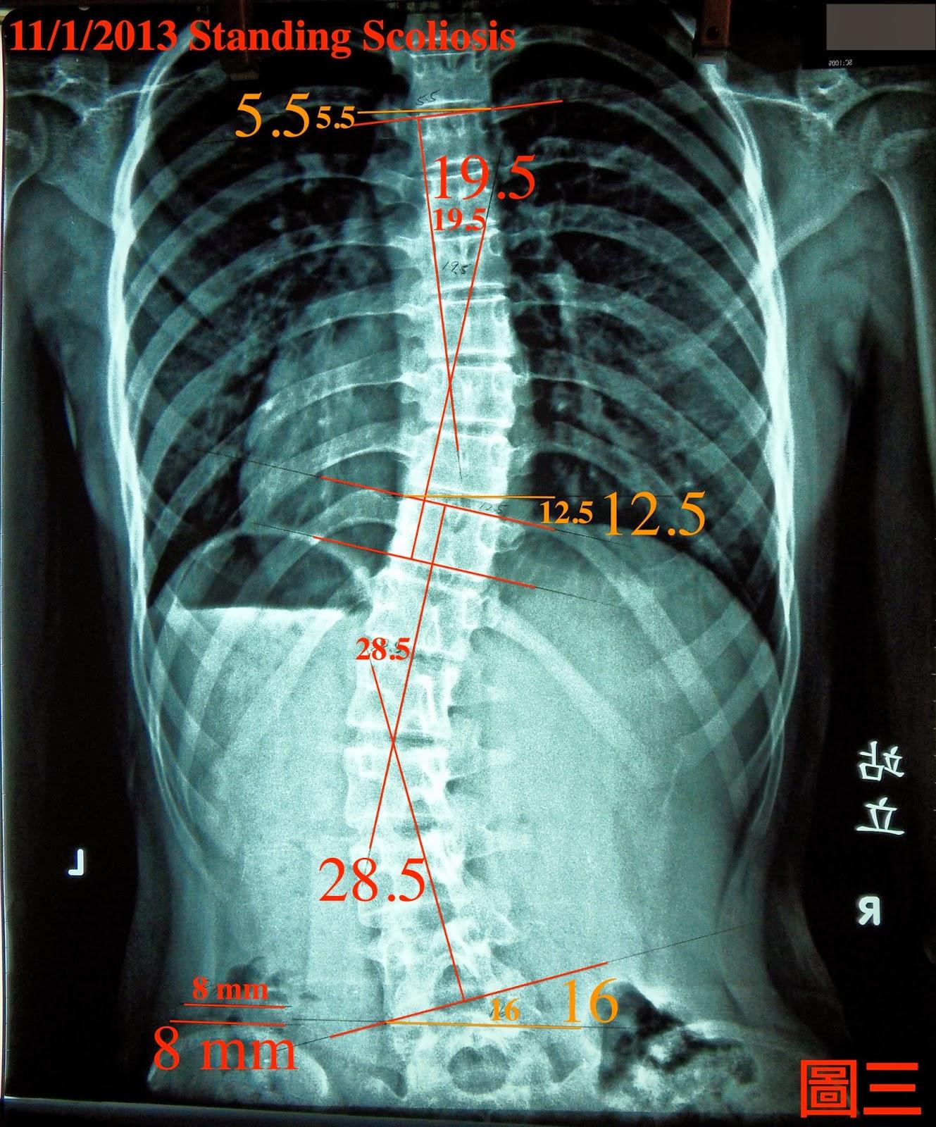 脊椎側彎, 脊椎側彎矯正, 脊椎側彎治療, 脊椎側彎矯正成功案例, schroth運動, schroth脊椎側彎, 德國Schroth, 脊椎側彎 推薦, 脊椎側彎 台中