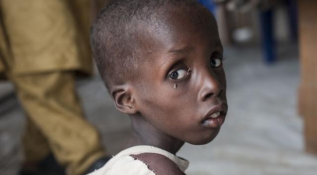 Angola   Os casos de subnutrição