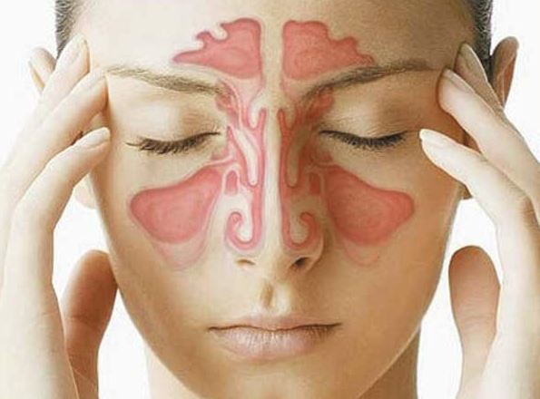 Nasal Congestion Causes Symptoms And Treatment