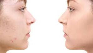 Acne Scar Removal Options Methods