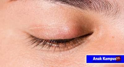 Cara menyembuhkan mata bintitan dengan cepat