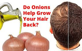 Onion juice recipes to prevent and treat hair loss