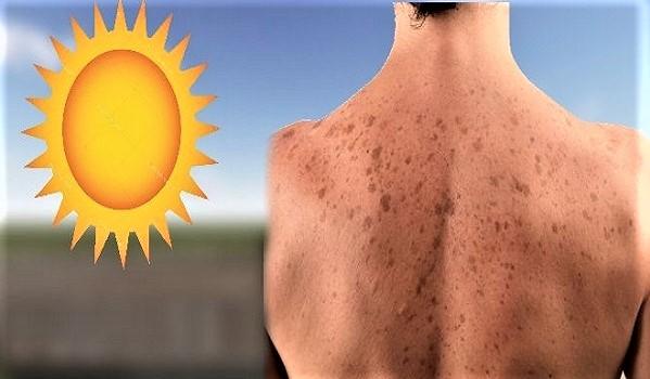 Güneş Lekeleri Neden Olur? Güneş Lekelerine Ne İyi Gelir?