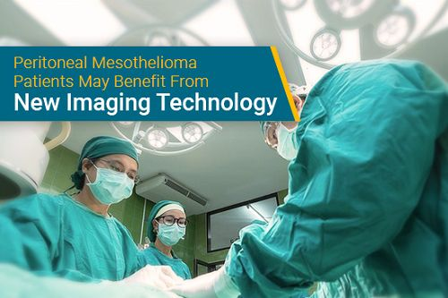 Image Mesothelioma Doctor Massachusetts