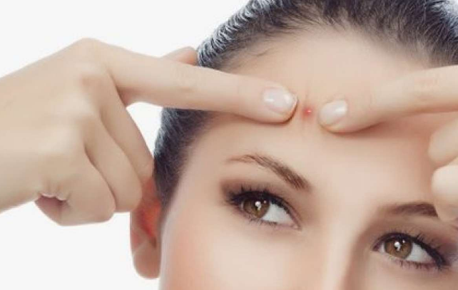 Manfaat Binahong Untuk Terapi Acne Vulgaris