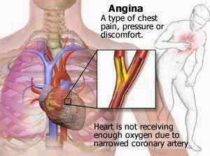 Angin duduk adalah sindrom jantung koroner.
