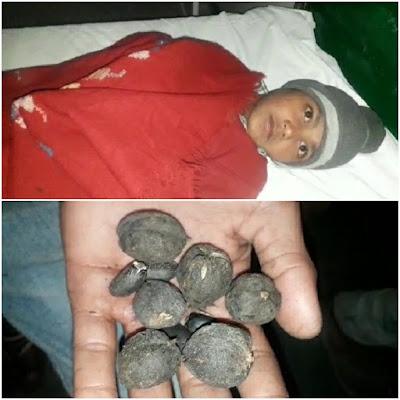 Childrens Ill After Eating Forest Fruit Uttar Pradesh News