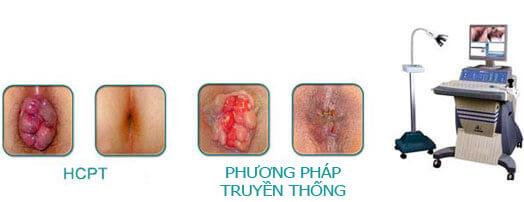 Cách phòng ngừa bệnh trĩ dễ dàng hiệu quả-http://benhlynamkhoa115.blogspot.com/