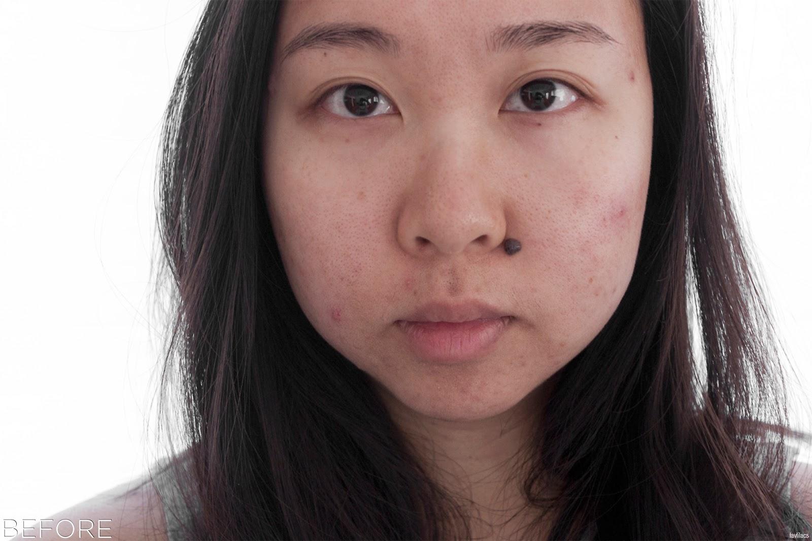 tria Hair Removal Laser Facial Hair Before
