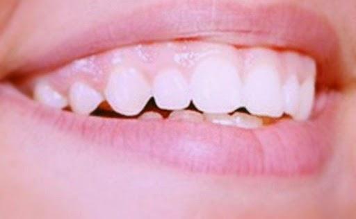 Tips! 10 Cara Alami untuk Mengobati Gusi Bengkak karena Sakit Gigi