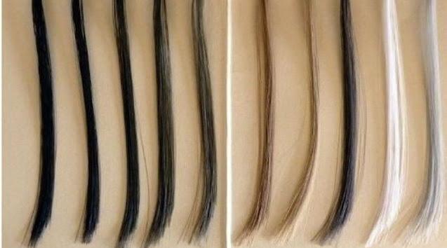 artificial-ya-synthetic-hair-transplant-kya-hai-fayede-nuksan-hindi.