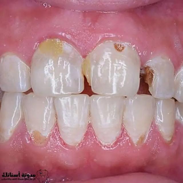 أنواع تسوس الأسنان،طرق الوقاية منه،وكذلك طرق العلاج.