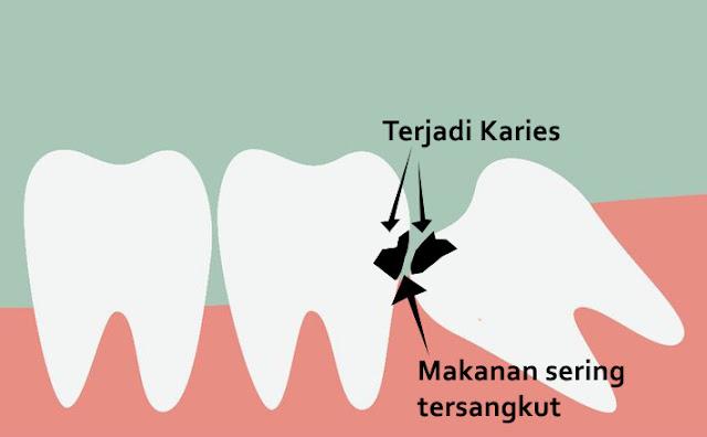 Penjelasan Lengkap Tentang Karies Gigi, Mulai dari Gejala, Faktor, Cara Pengobatan, Sampai Cara Pencegahannya