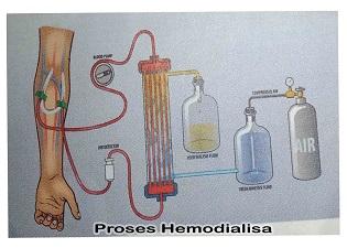 Manfaat dan Proses cuci darah