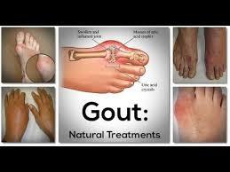 >Gout Solution - Blue Heron Health News