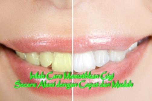 15 Cara Memutihkan Gigi Kuning Secara Alami Dan Cepat Hanya Dalam 3