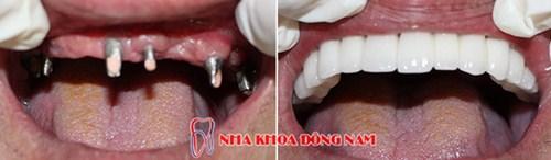 Giá Cấy Ghép Implant Tốt Nhất Hiện Nay -