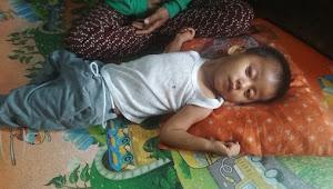 Balita 3 Tahun Lumpuh Sejak Lahir di Desa Sekernan Diduga Alami Penyakit Lumpuh Otak