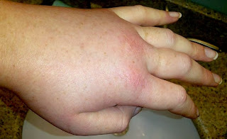 Image of swollen hand of patient affected by hereditary angioedema
