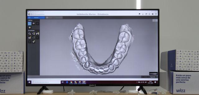 Alineación dental invisible