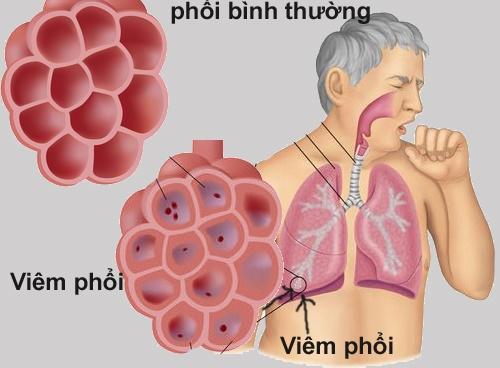 Mắc bệnh phổi cấp tính do hít phải mùi hôi bốc lên từ bể phốt