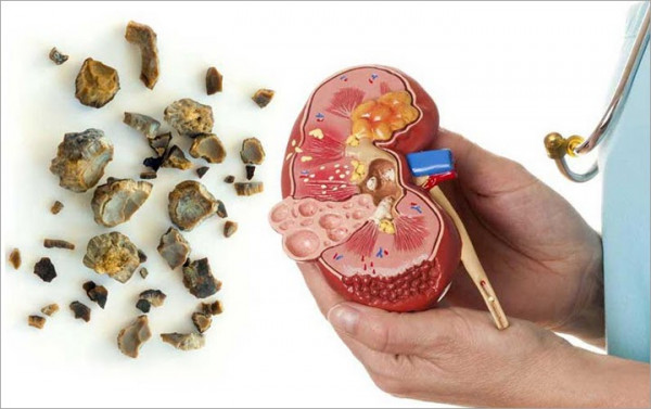 3 Simple Ways To Prevent Kidney Stones