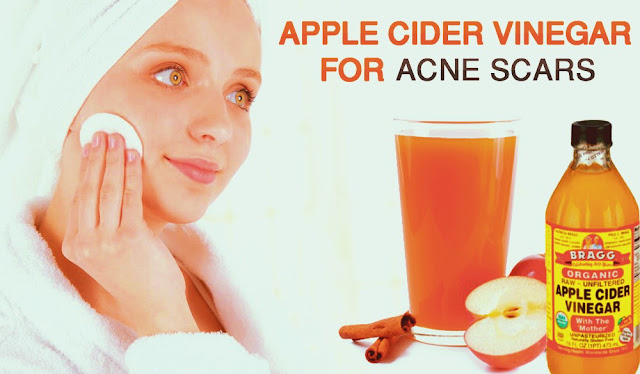 apple cider vinefer for acne