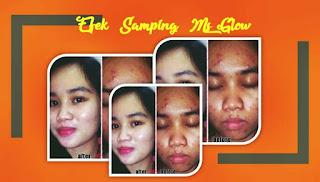 efek samping ms glow