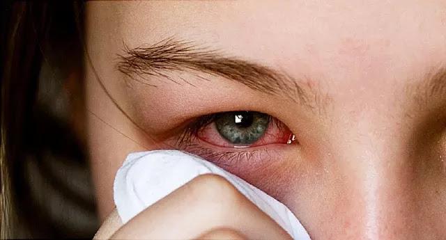 التهاب الملتحمة وألم العين