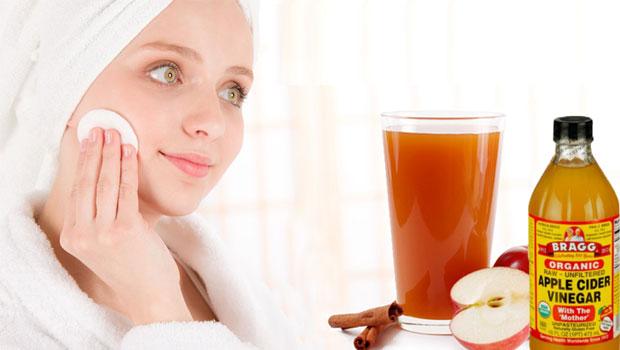 5 Cara Sederhana Mencegah Jerawat Dengan Cuka Sari Apel