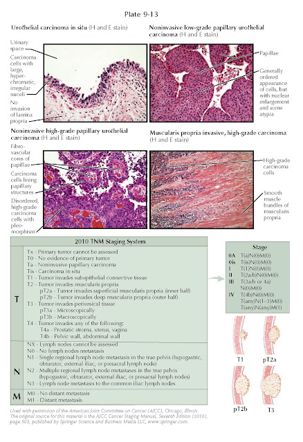 HISTOPATHOLOGIC FINDINGS AND STAGING SYSTEM OF TUMORS OF THE BLADDER