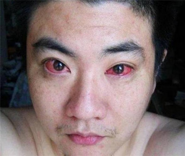 شاب اصيب بسرطان العين...والسبب شيء نقوم به قبل النوم!