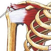 Rotator Cuff Tear- www.physioscare,com