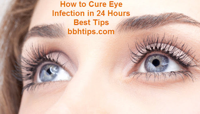 How to Cure Eye Infection in 24 Hours Best Tips