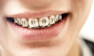 Alternatives To Foods You Should Avoid While Wearing Braces