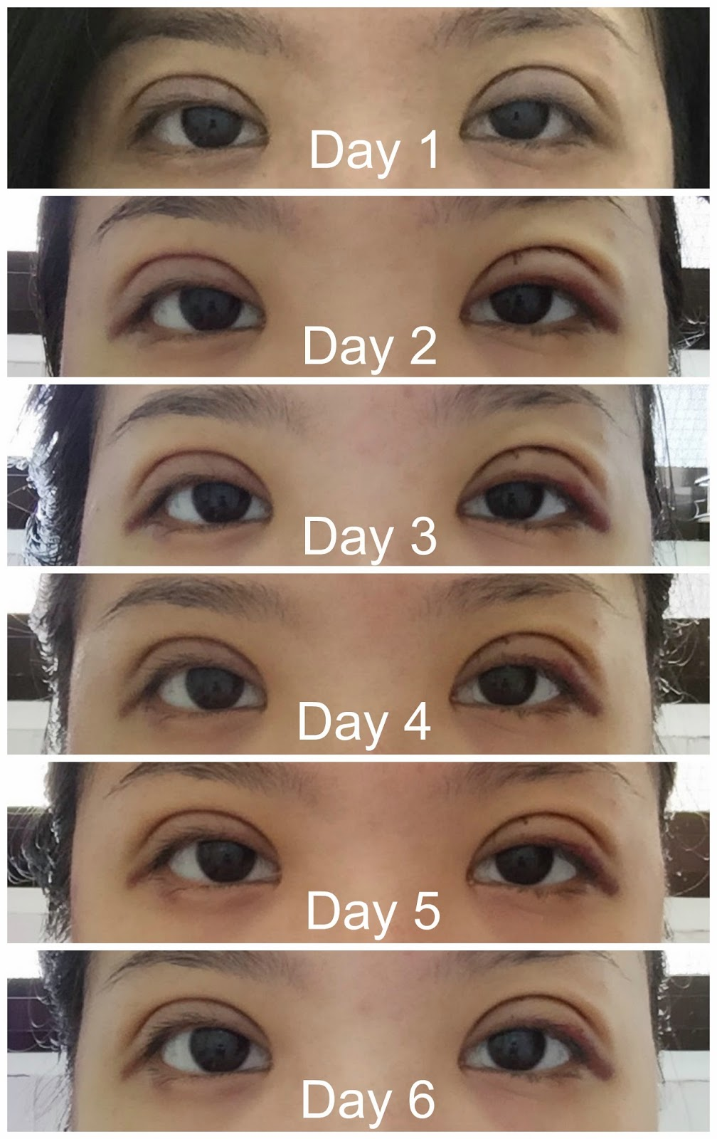 Double Eyelid Surgery: My Double Eyelid Surgery